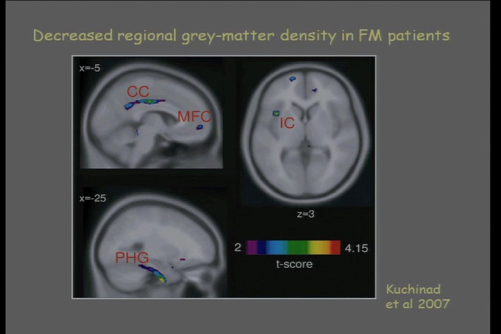 Brain dysfunction in Fibromyalgia