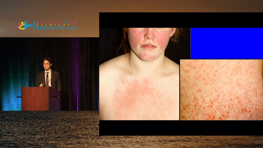 Skin Manifestations of Rheumatic Disease - Drew J. Kurtzman, M.D.