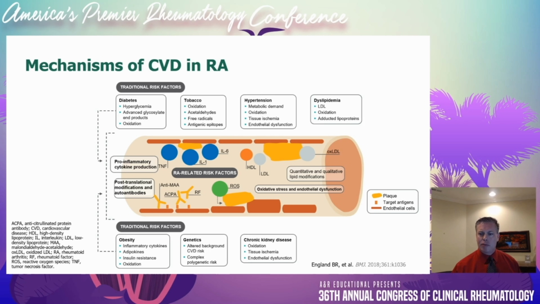 Cardiovascular Disease in Connective Tissue Disease: Do the medications help or hurt? - Jeffrey Curtis