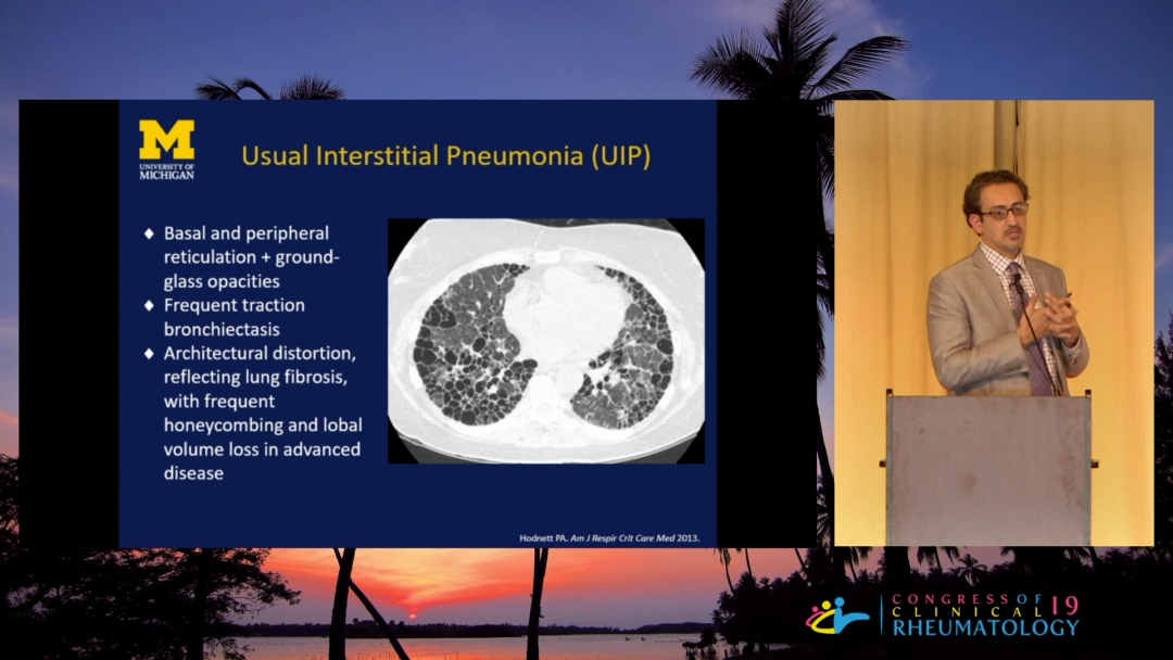 Interstitial Lung Disease in Connective Tissue Disease