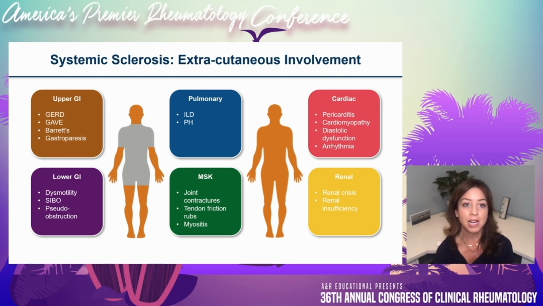 Treatment of Systemic Sclerosis: Focus on Existing & Emerging Therapies - Elizabeth Volkmann