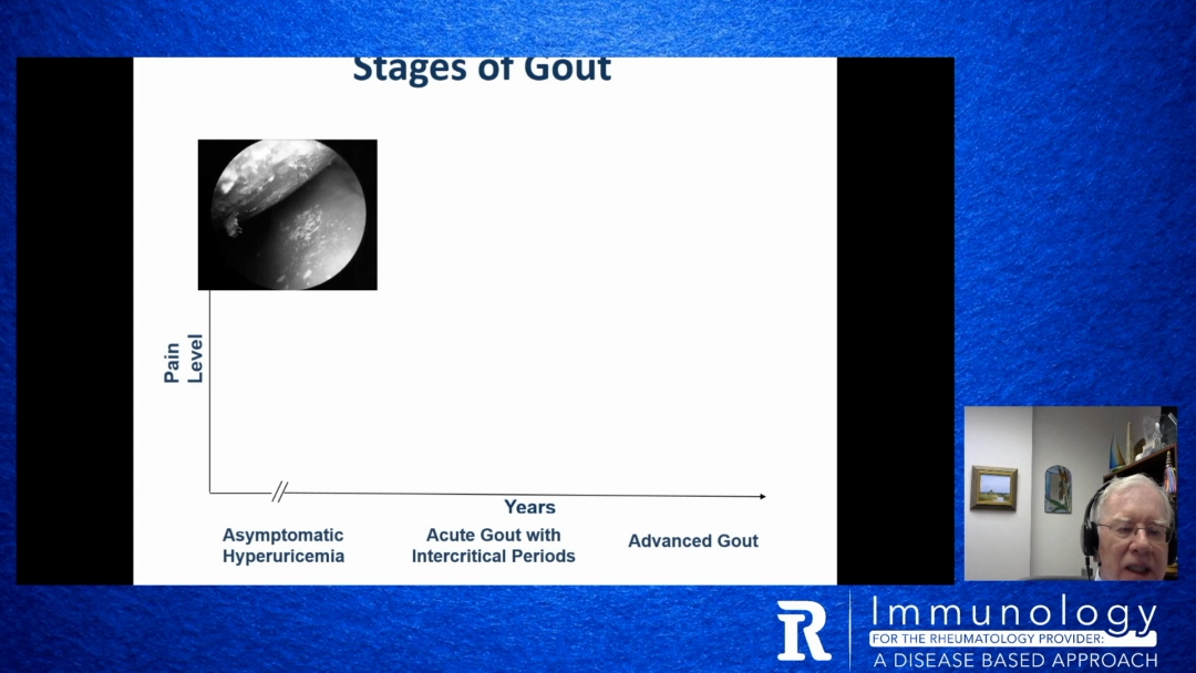 The Immunology and Immunologically Targeted Therapy of Gout